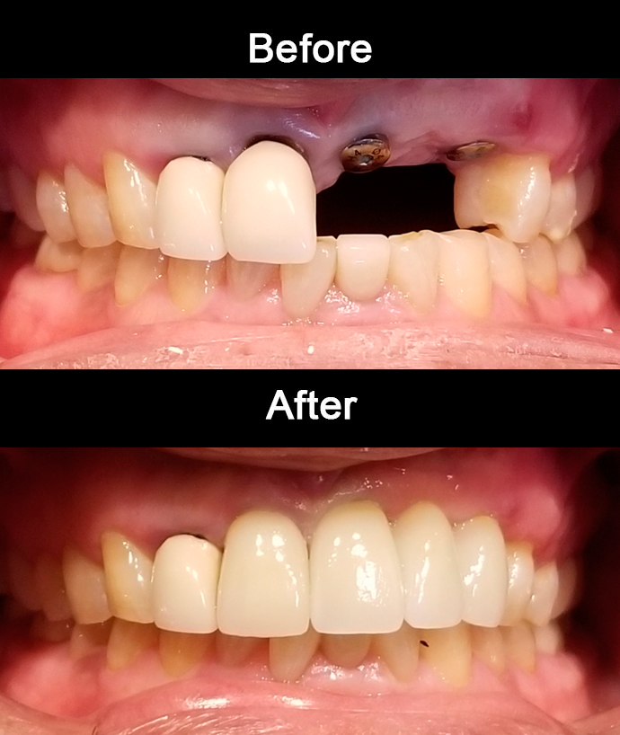 Anterior Zirconia Implants