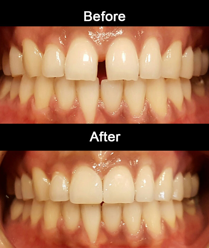 Diastema Closure by Anaheim Dental