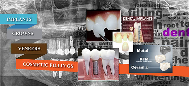 Anaheim Dental Group- Cosmetic Restorative Dentistry in Anaheim, Implants, Veneers,  Crow&ns & Bridges, Dental Bondings,  Dentures/ Partials, Root Canals, Inlay & Onlays, 미용크라운 지르코니아크라운 애너하임 플러튼
