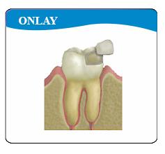 Anaheim Dental Group  best Implant Dentistry in Anaheim, Inlay, Inlay,미용치과 임플란트 전문 애너하임 플러튼