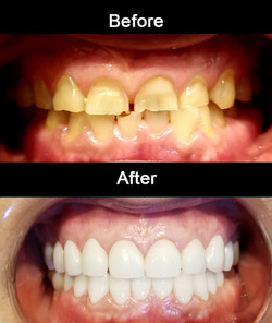 Full Mouth Cosmetic Crowns