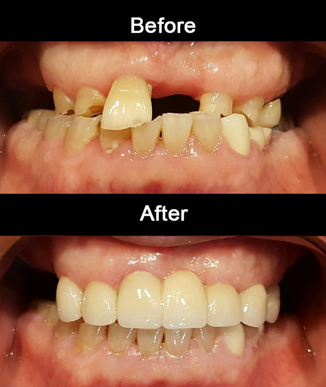 Layerd Zirconia Bridge & Crowns2