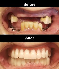 Zirconia Implant Bridge and Implants