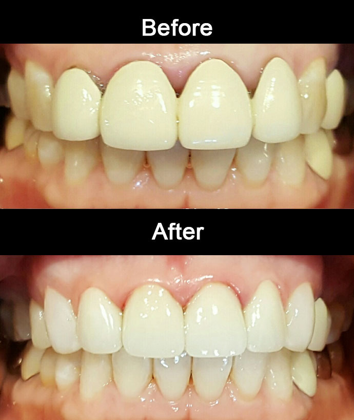 Zirconia Crowns & Bondings