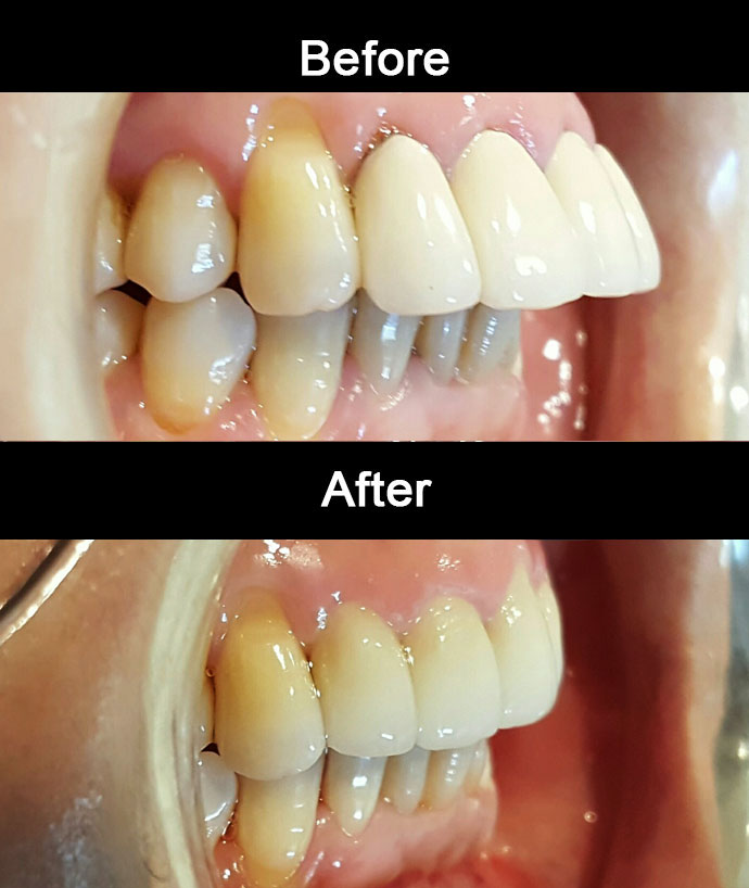 Layered Zirconia Crowns