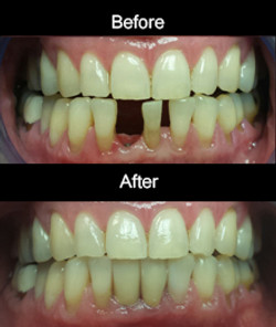 Implant and Crown- Lower Incisors