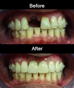 Cosmetic-Implant-crown-&-bondings