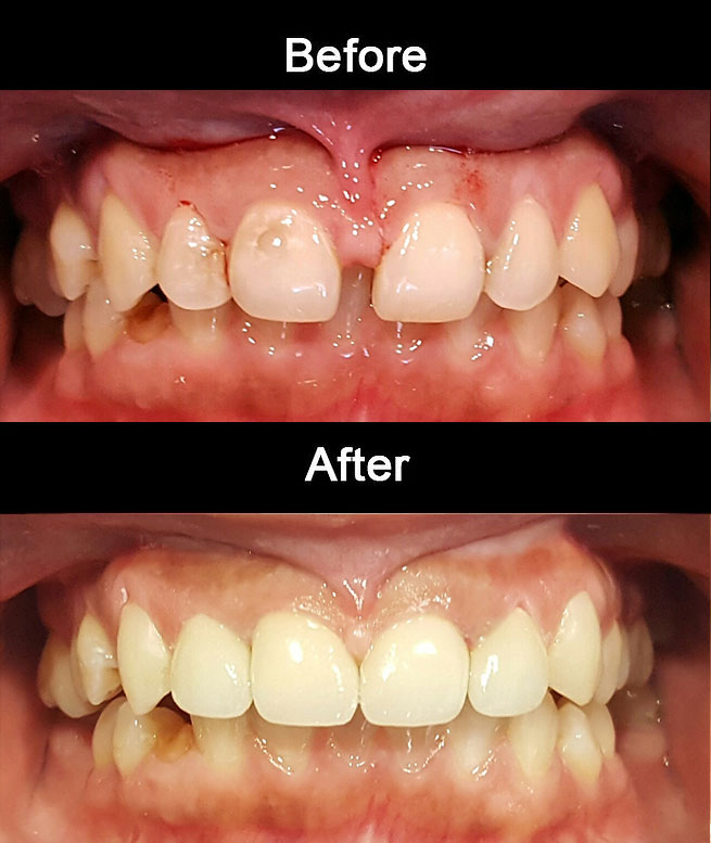 Anterior-Cosmetic-Crowns