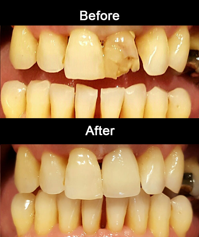 Anterior Zirconia Crown