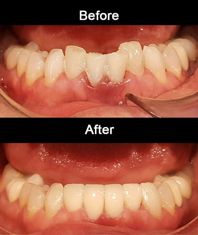 Layerd Zirconia Crowns