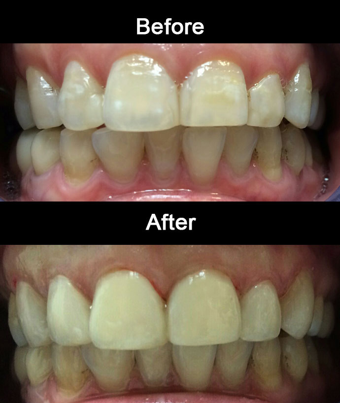 Cosmetic Bonding by Anaheim Dental
