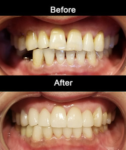Cosmetic Crowns with Implants