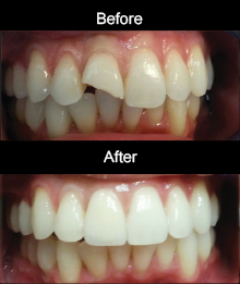 Layered Zirconia Crown