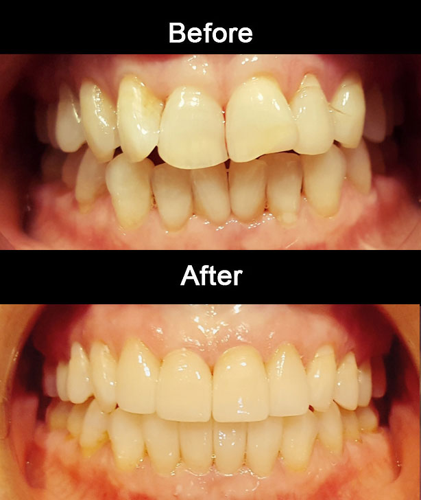 Cosmetic E-Max Crowns