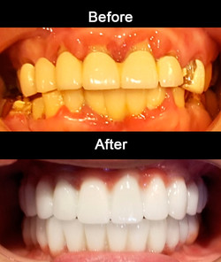 Full Mouth Implant Reconstruction