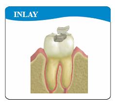 Anaheim Dental Group  best Implant Dentistry in Anaheim, Inlay, Onlay,미용치과 임플란트 전문 애너하임 플러튼