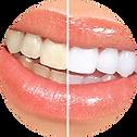 teeth-whitening-dentist-westend.png