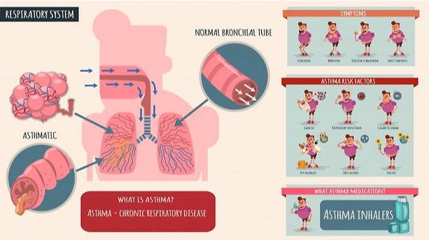 asthma-symptoms-risk-factors-medications