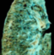 300px-End-stage_interstitial_lung_diseas