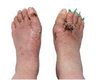 ayak sağlığı tabanlık düztabanlık topuk dikeni
