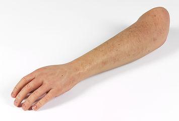 silikon kol protezi (4).jpg