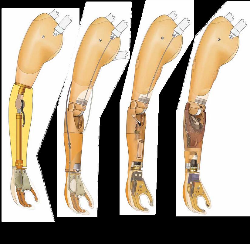 kol protezi dirsek protezi el protezi takma kol bilek protezi parmak protezi