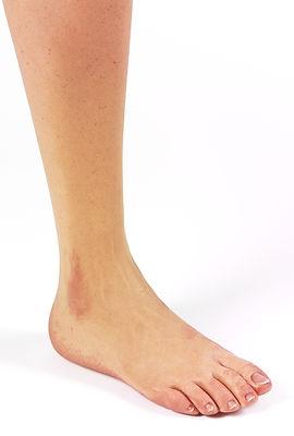 silikon ayak bacak protezi (1).jpg