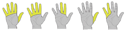 biyoni parmak, bionic parmak, bionic finger, touch bionics, bebionic, ottobock, össur, parmak protezi, el, kol