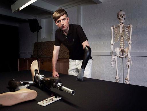 kol protezi, bacak protezi, biyonik kol, biyonik el, genium, ottobock, össur