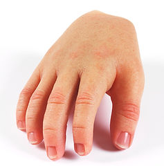 silikon el protezi (8).jpg