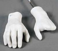 Silikon Parsiyel Parmak Protezi el kol biyonik bionic hand prodigit ottobock touch bionics