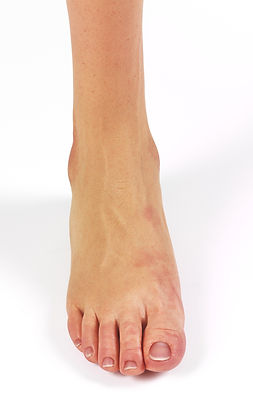 silikon ayak bacak protezi (3).jpg