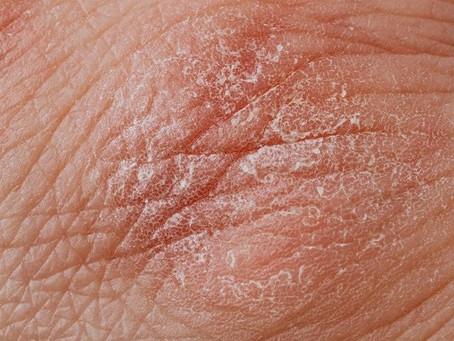 Varför är min hud torr?
