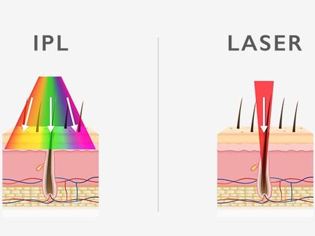 Shedding light on hair removal: IPL vs Laser