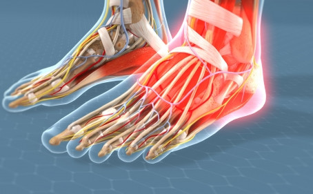 Ankle Arthritis Symptoms & Treatments