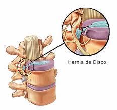 Tengo dolor de espalda que se va a la pierna ¿es ciática? ¿me tengo que operar? Parte 1