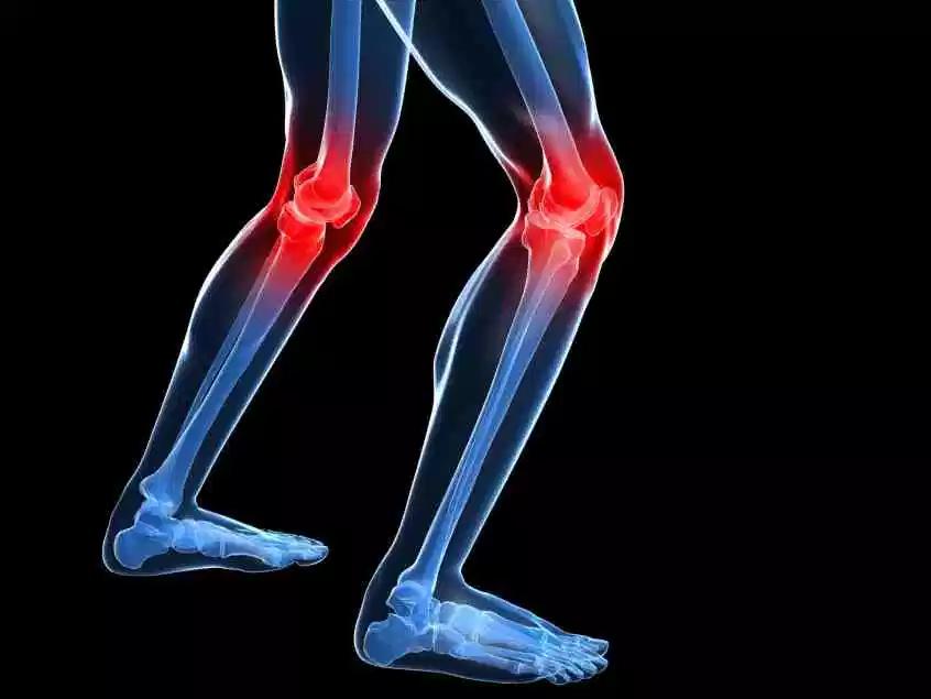 Terapia para dolor de rodilla CDMX