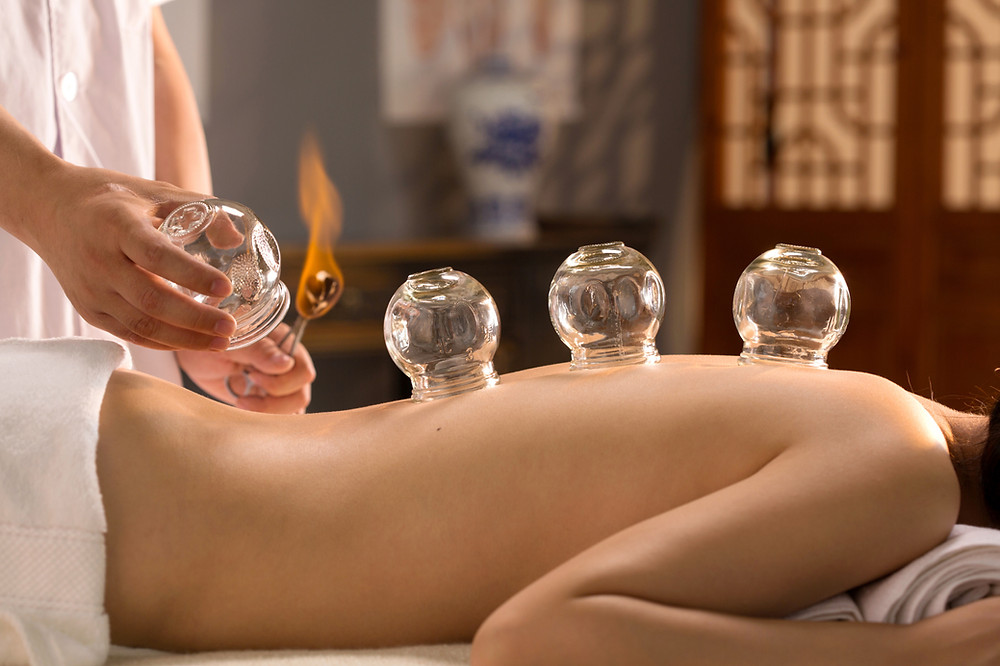 Cupping Therapy Mexico