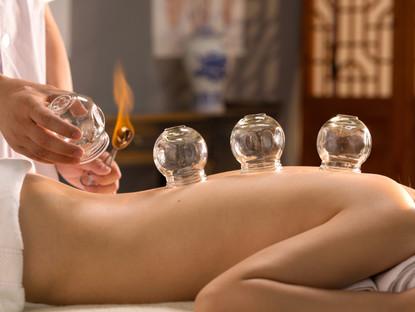 Cupping Therapy (terapia por ventosas) ¿funcionan?