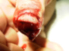 Daumenamputationsverletzung