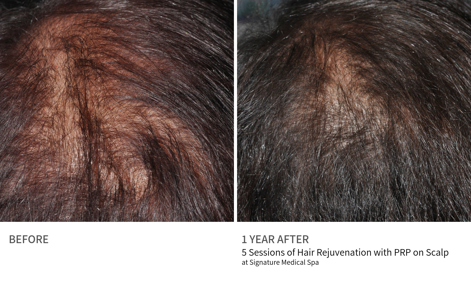 Before and After Hair Rejuvenation