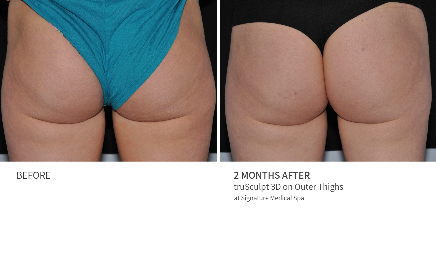 Before and After truSculpt 3D