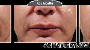 Transformation Tuesday: Bellafill®