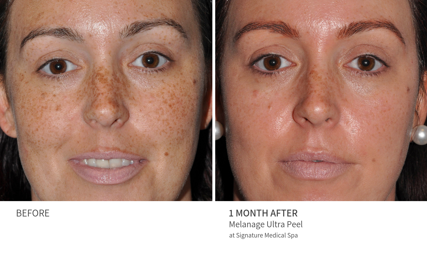Before and After Melanage Ultra Peel