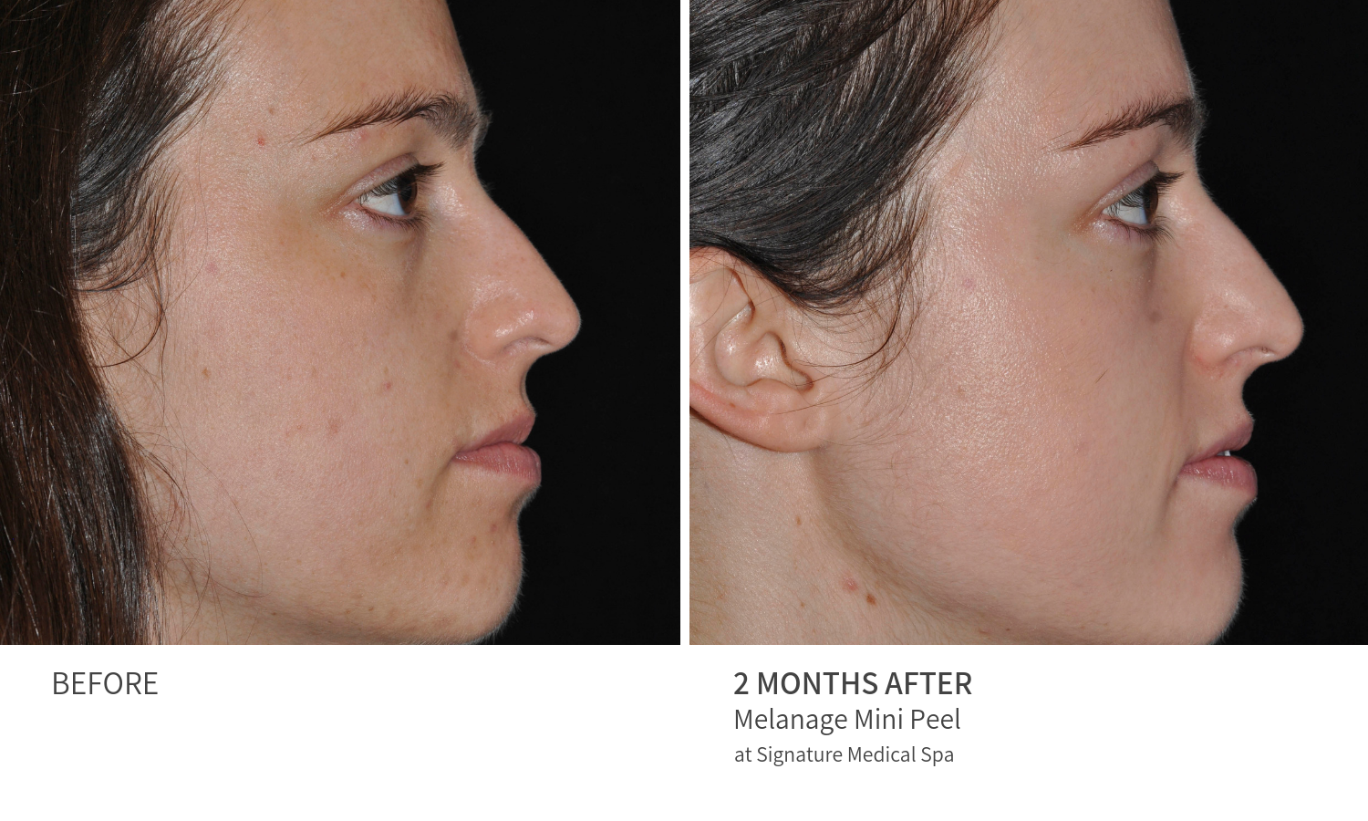 Before and After Melanage Mini Peel