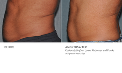Before and After Coolsculpting