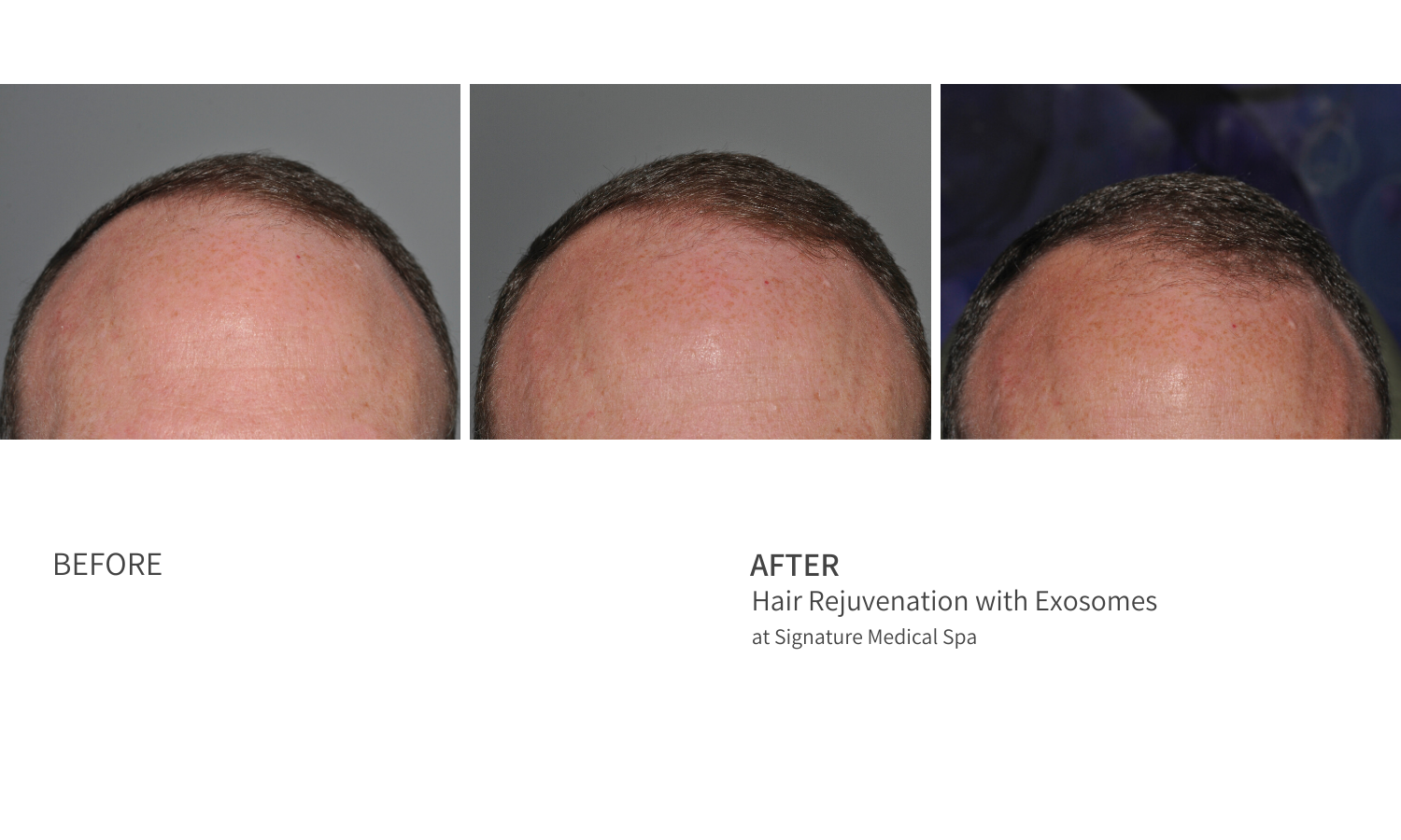 Before and After Exosomes