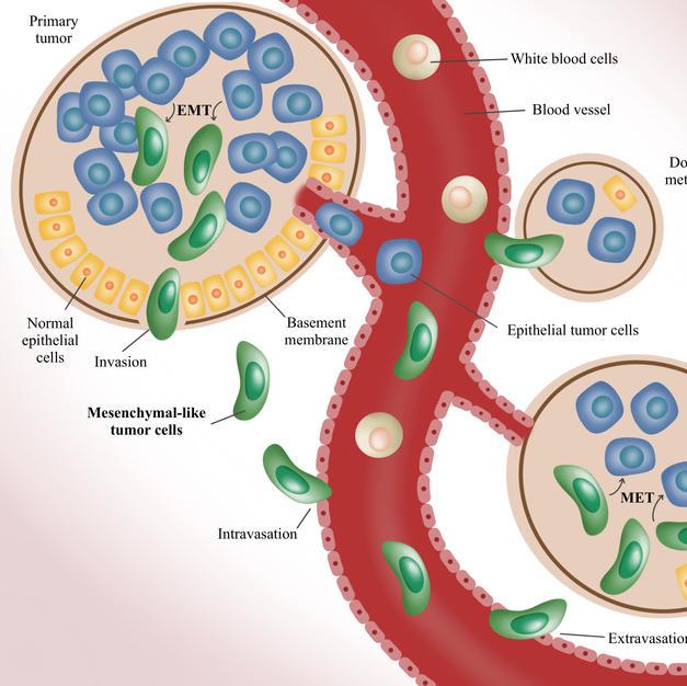 Metastasis of tumor cells