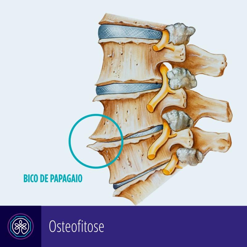 Instituto Pro Therapie   Osteofitose