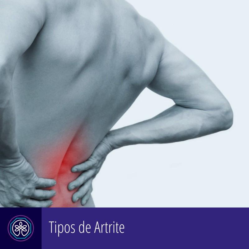Instituto Pro Therapie | Artrite